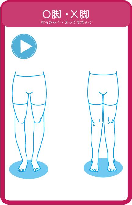 滋賀県草津市整体とカイロプラクティックの「O脚・X脚」イラスト