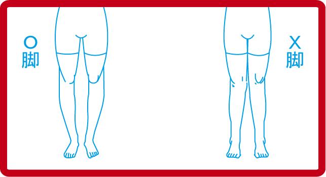 X脚・O脚のよくある体形
