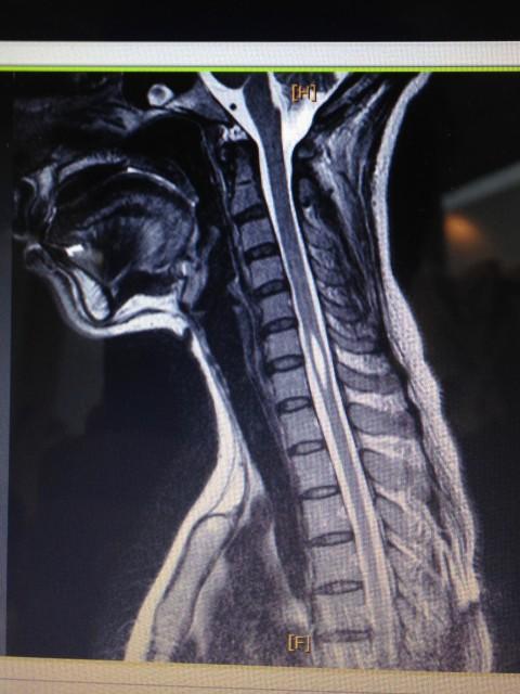 脊髄空洞症側面MRI